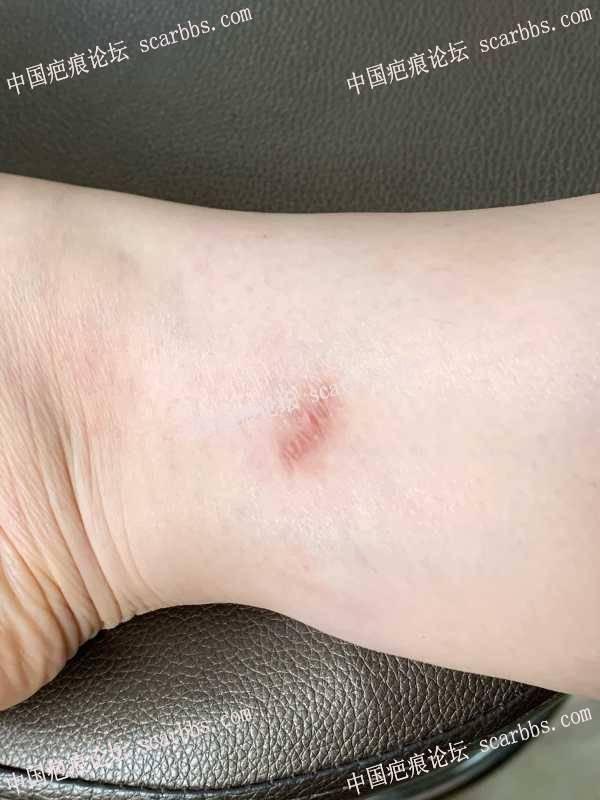脚踝处有一处15年的凹陷疤痕,可以做手术恢复吗?
