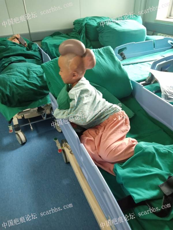 愿天下宝宝再无此伤害··· 热油烫头全部康复历程 烫伤,耳朵烫伤,面部疤痕,头部瓜瓣移植