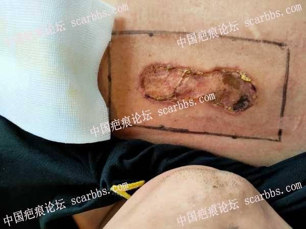 #瘢痕疙瘩手术治疗过程#