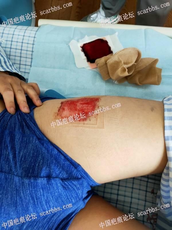 胸前疤痕疙瘩,植皮手术加浅放治疗
