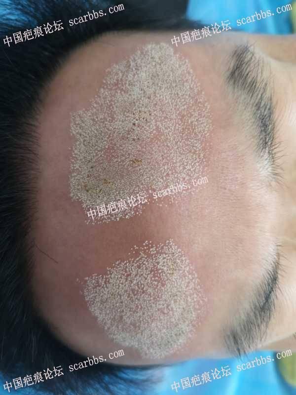 今天的额部表浅疤痕二氧化碳点阵激光加电浆体离子束治疗