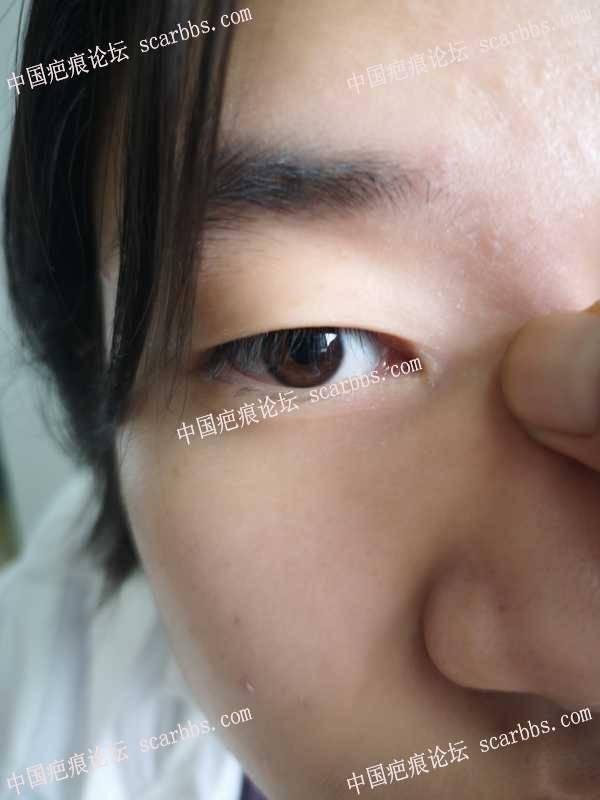 埋线双眼皮,避免双眼皮疤痕形成
