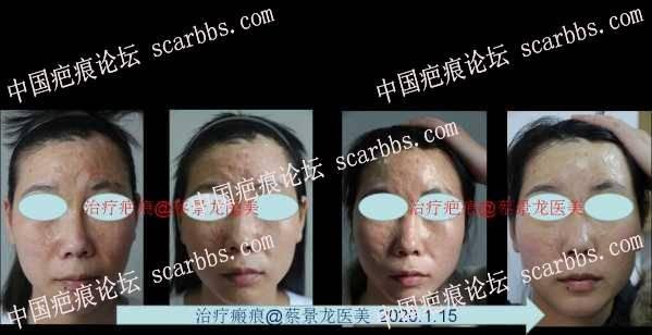 点阵激光加电浆体(离子束)治疗面部表浅疤痕效果更好
