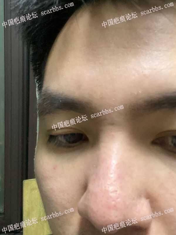 鼻子上的这个疤痕最好是该怎么做