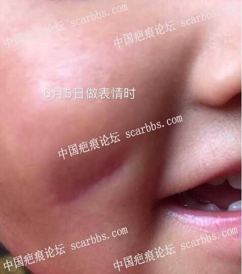 面颊磕伤拆线两个月表情凹