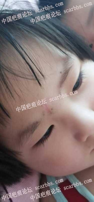 孩子右侧眉毛磕伤缝针,脱痂后可以用生长因子嘛