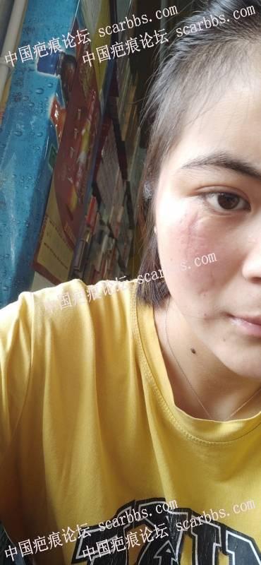 面部凹陷疤痕能手术祛除吗?