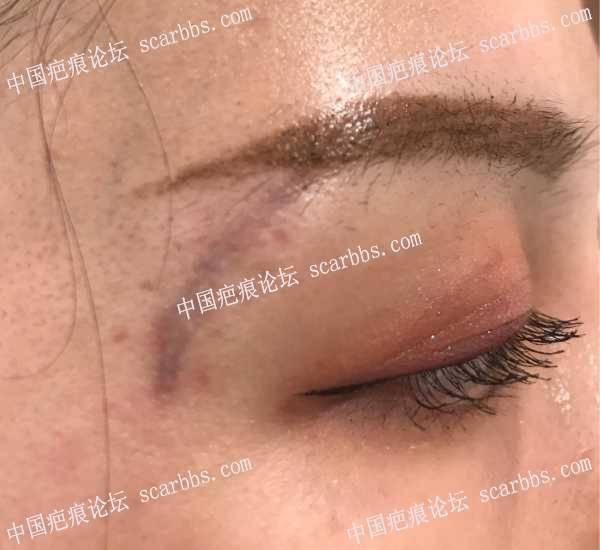 面部缝针疤痕三个月了,色沉还是很严重