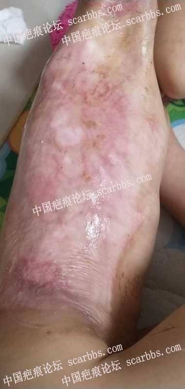 5岁女儿,烧伤愈合后6个月了,请有经验的朋友帮忙看看