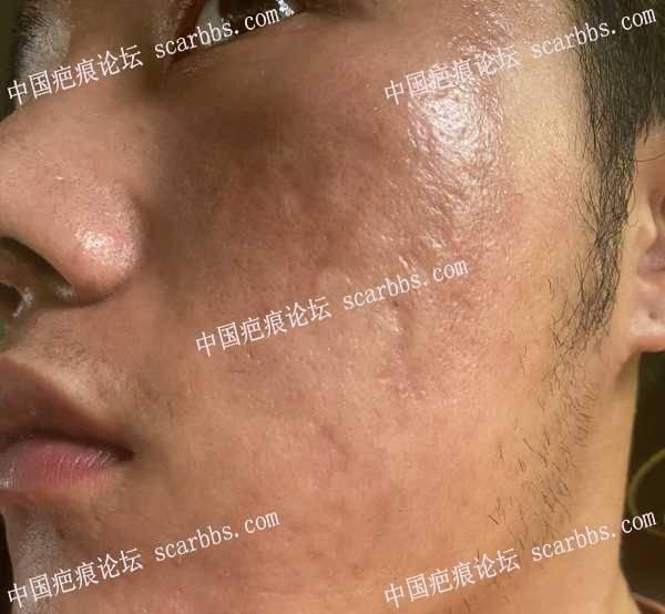 面部刷酸凹陷疤痕,求助修复方法?