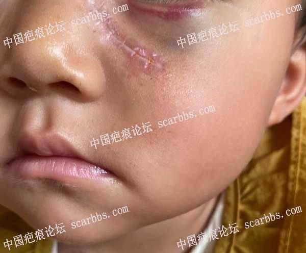 面部手术疤痕第九天,大家帮我看看