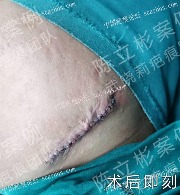 下颌疤痕疙瘩术后8个月复诊记录
