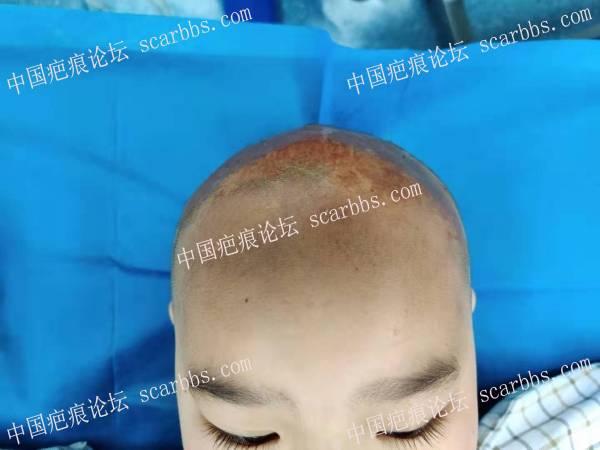 头部瘢痕增生挛缩畸形  头发还能长出来吗