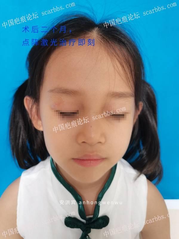 宝宝上眼睑外伤还是建议缝合修复!二氧化碳点阵激光还是放心可靠的!