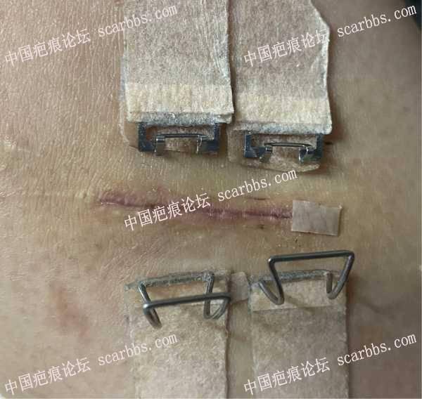 腿部凹陷疤痕切缝5.27