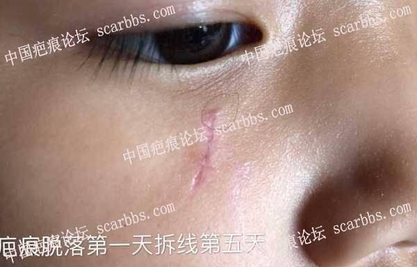 疤痕上面的小凸起就是猫耳吗?