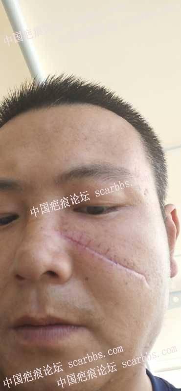 面部拆线一天,后期用什么去疤药物,和治疗方案
