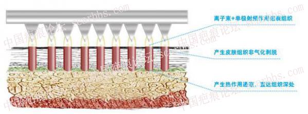Plasma离子束能治疗哪些疤痕