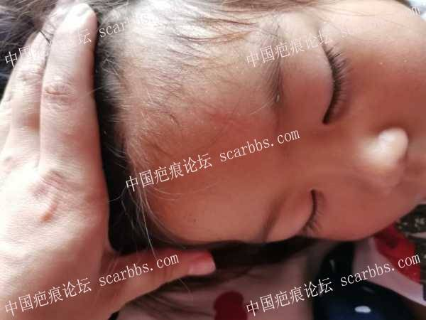 额头磕伤疤痕治疗九个月