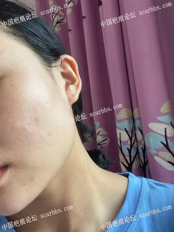 面部凹陷疤痕切缝两年了