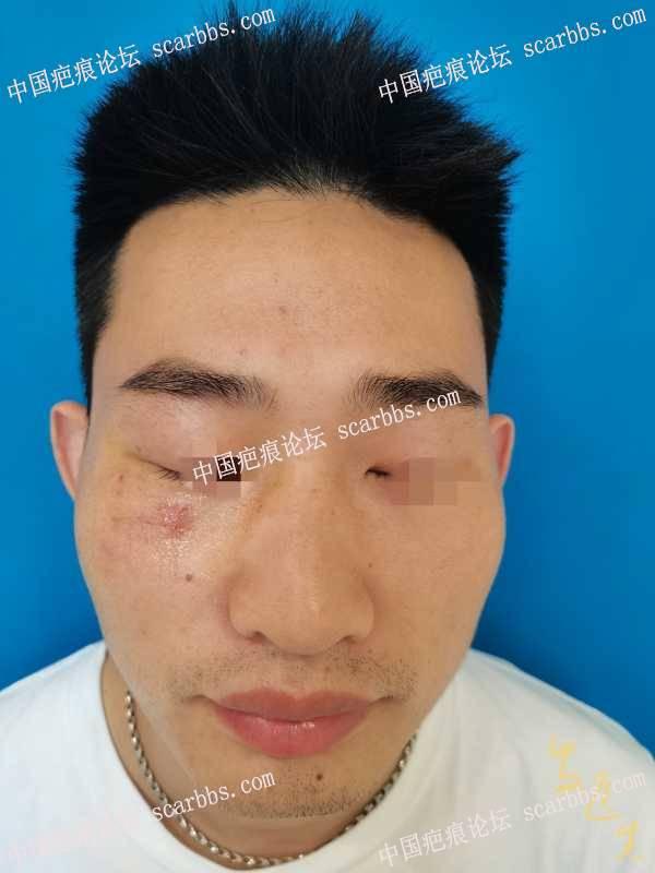 上周小伙子打篮球,眼镜片刺伤皮肤!