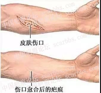 浅表性疤痕是否需要治疗