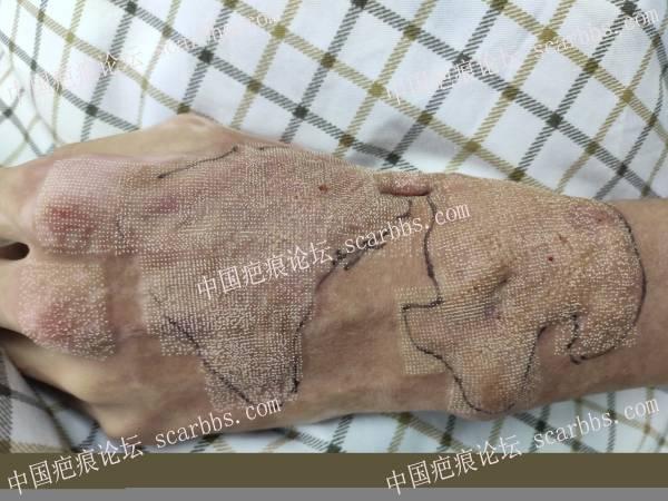 左手烧伤疤痕增生挛缩  离子束治疗案例
