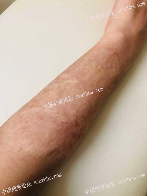 手臂烫伤疤痕20多年了,可以手术吗?