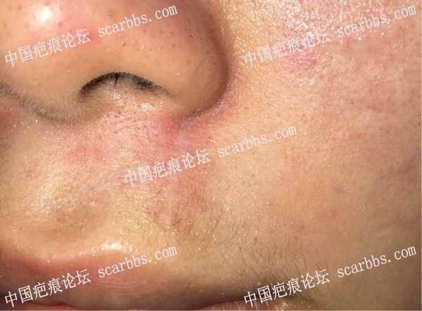 面部人中擦伤陈旧疤痕在武晓莉那里做了治疗