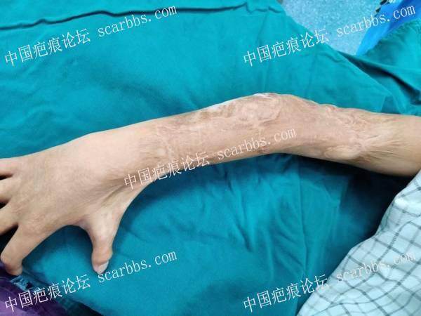 右手疤痕挛缩功能障碍  手术治疗案例