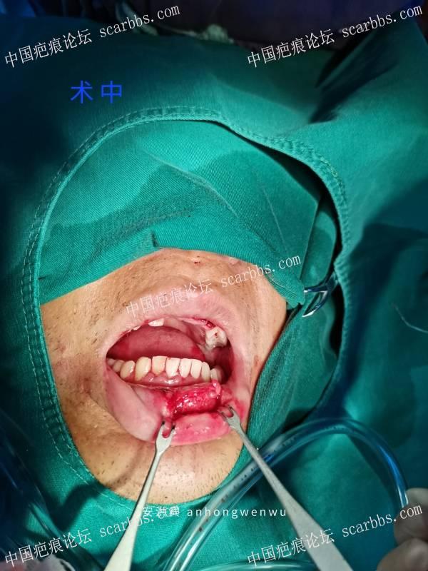 在工地工作时,不小心摔伤致下嘴唇损毁,行显微整形修复术