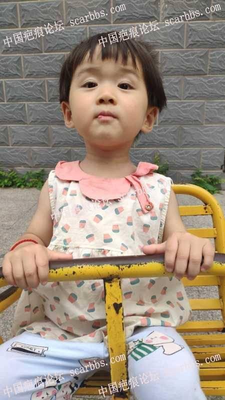 孩子三个月前磕伤嘴唇,求助