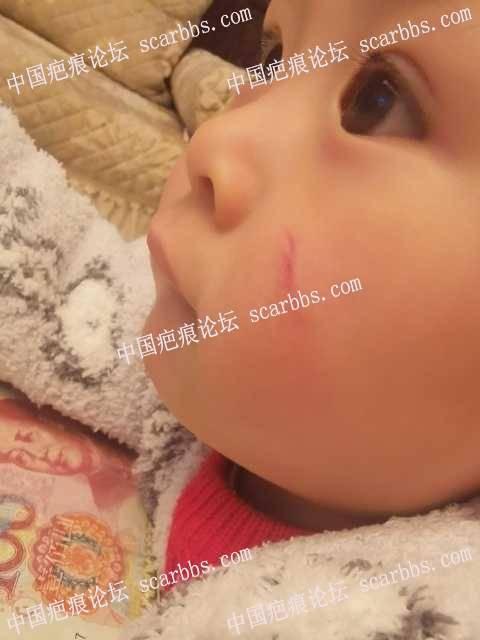 儿童面部凹痕严重,正在进行点阵激光治疗