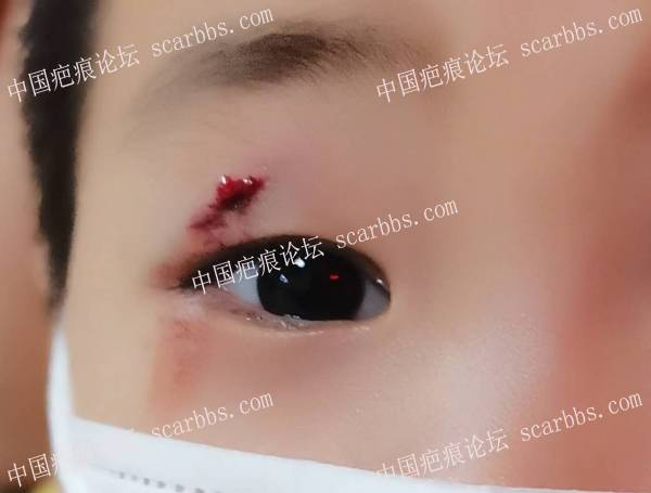 宝宝眼皮摔伤,后期怎么处理?