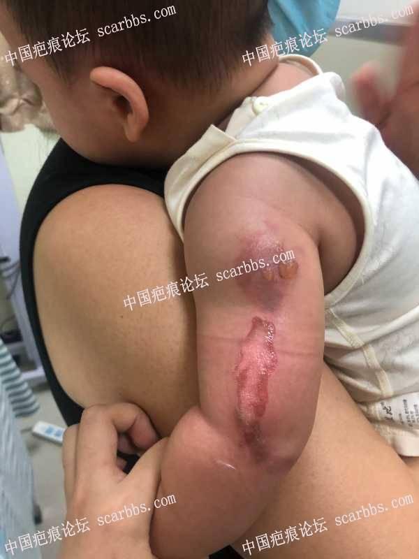 9个月宝宝被热粥烫伤,后期会留疤吗?怎么护理好?