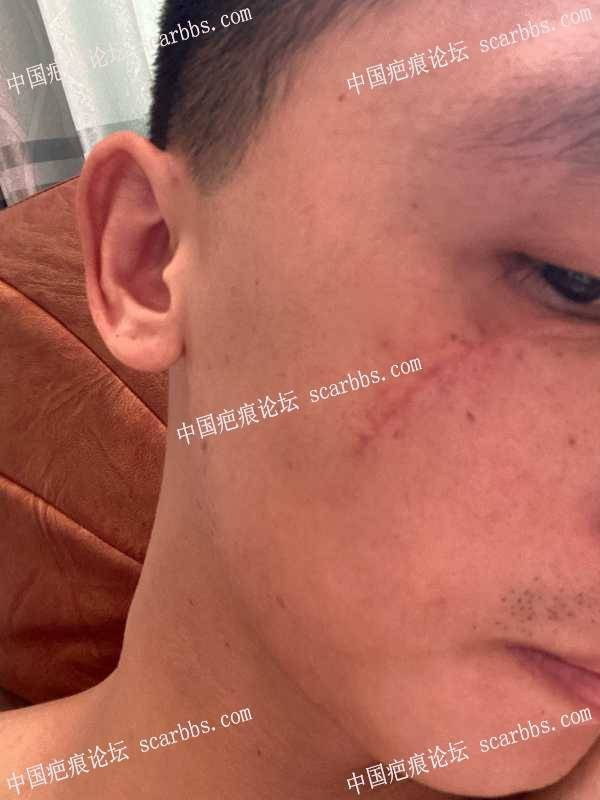 面部伤口拆线21天,等待变好的一天