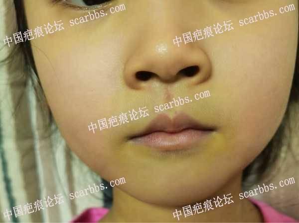面部人中疤痕是否要发白或者要增生?大家帮忙看看