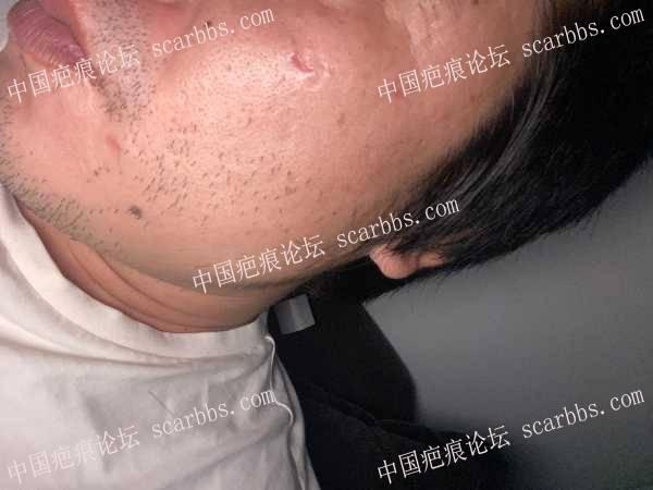 论坛小编推荐的杨医生痘坑切除术