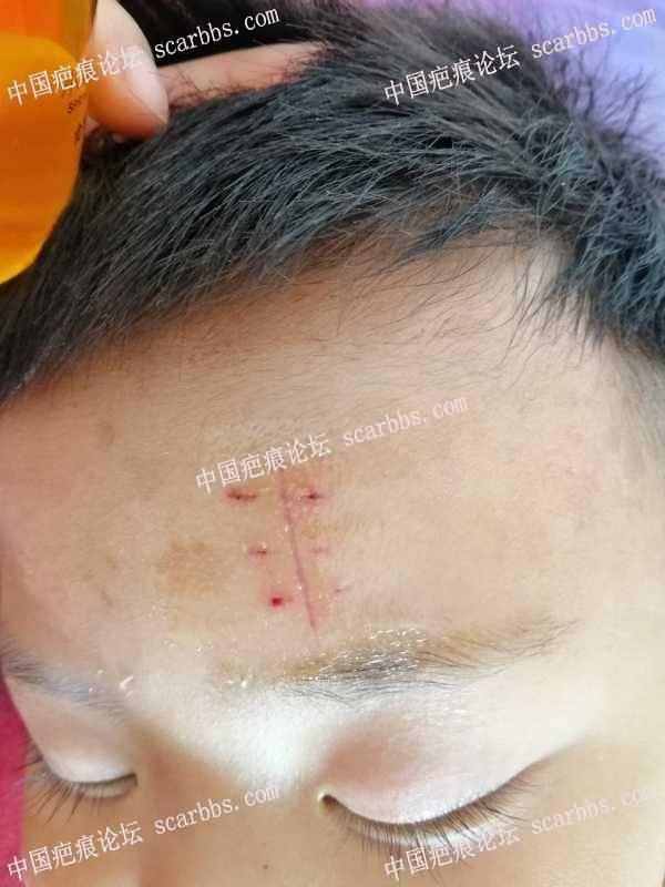 额头受伤快一个月了,针眼还能去得掉吗?