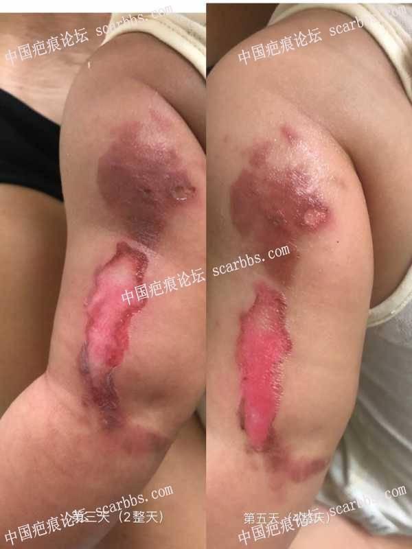 9个月宝宝热汤烫伤 求指导护理抗疤方法