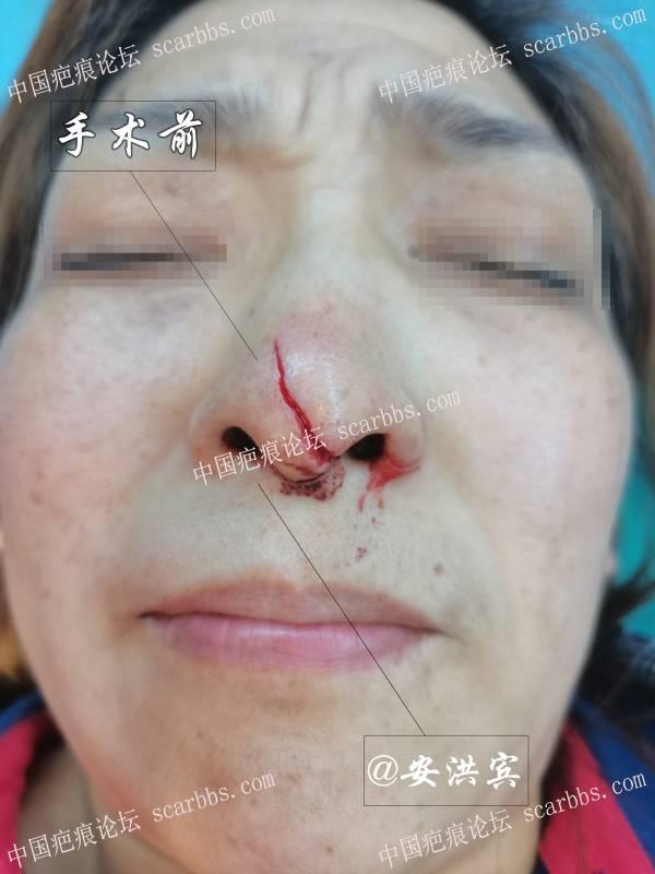 鼻子磕伤不用怕,这个效果你可还满意?