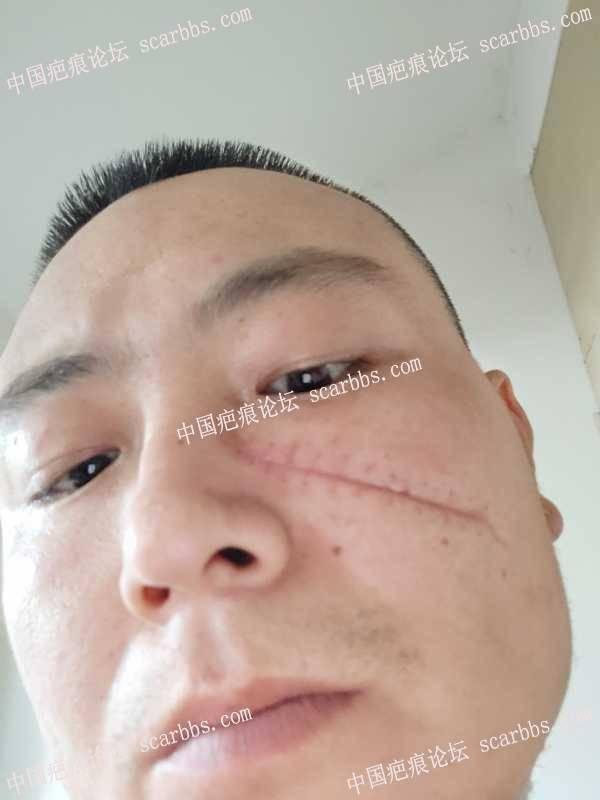 面部受伤拆线10天了,凹的厉害,能长平吗