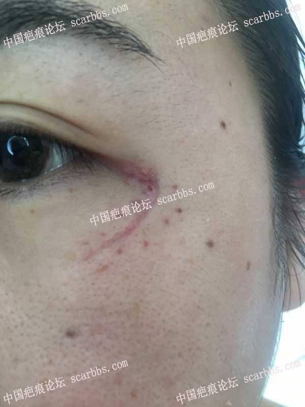 眼角伤口拆线7天了,现在需要抹什么药膏祛疤效果会好点?