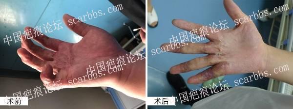 右手瘢痕增生功能障碍  手术治疗案例分享
