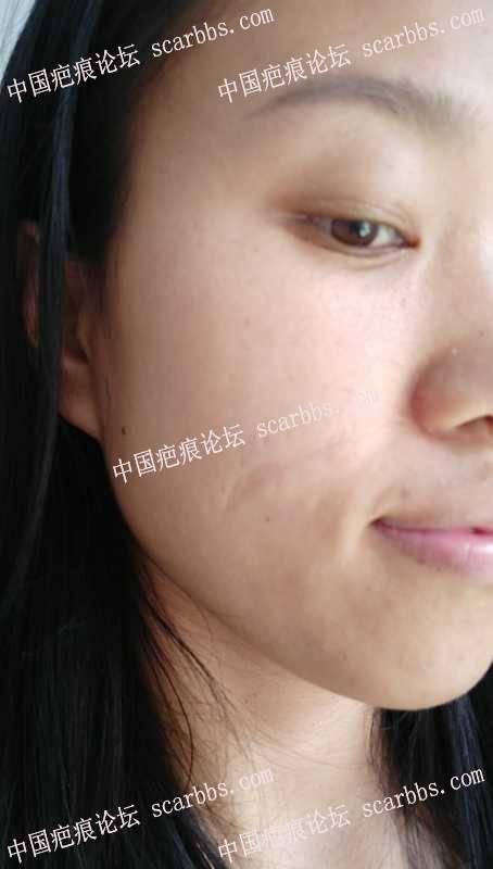 面部的凹陷疤痕,谁给我个方案我要整它