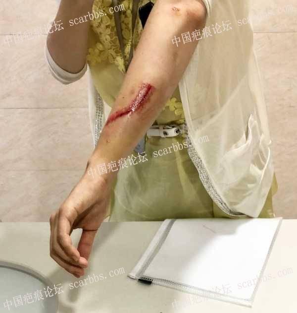 哺乳期摔伤疤痕护理求助