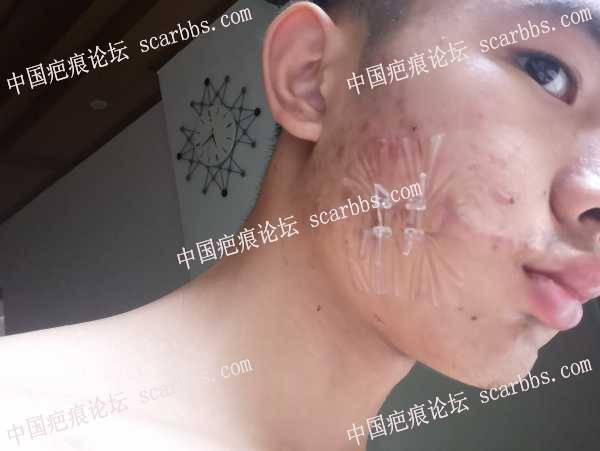 面部割伤疤痕变宽增生,做了手术切除