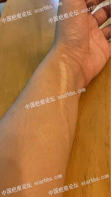 手臂术后七年多的疤痕,怎么才能快速除疤