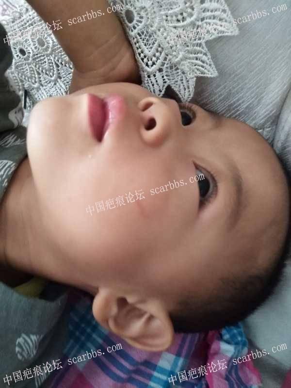 3岁半孩子面部被抓伤,感觉少层皮
