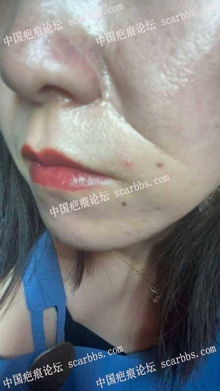面部20多年的凹凸疤痕可以治疗么?